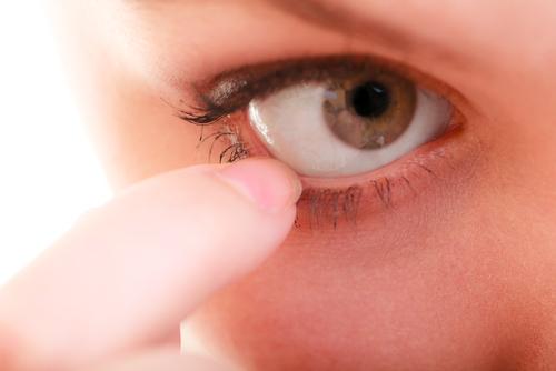 nadmierne łzawienie oczu